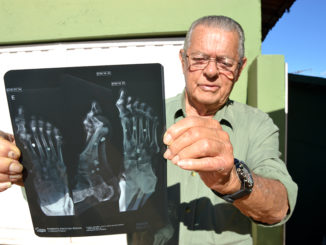 "CHUMBOS ANTIGOS — Roberto Rocha, o ""Pé de Chumbo"", mostra raio-X recente com os chumbos daquele tiro acidental que aconteceu há 68 anos"