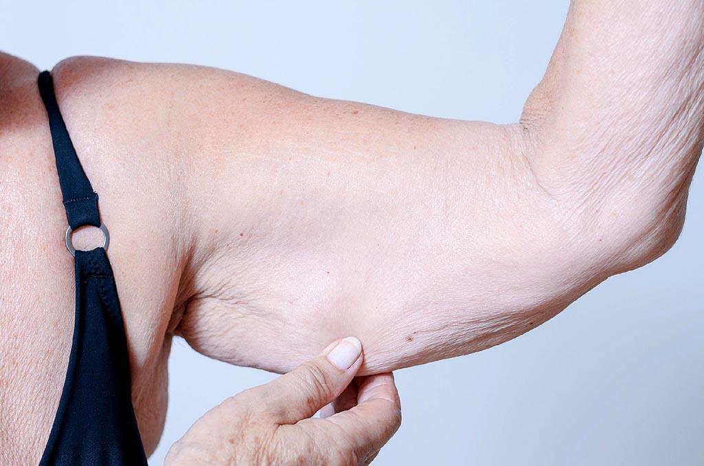Taxa baixa de massa muscular pode  indicar risco de morte para idosos